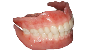 2.精密・審美義歯