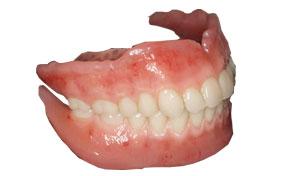 精密義歯・入れ歯